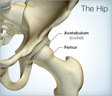 Hip pain physio parramatta