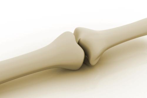 Bone, strength, physiotherapy, parramatta