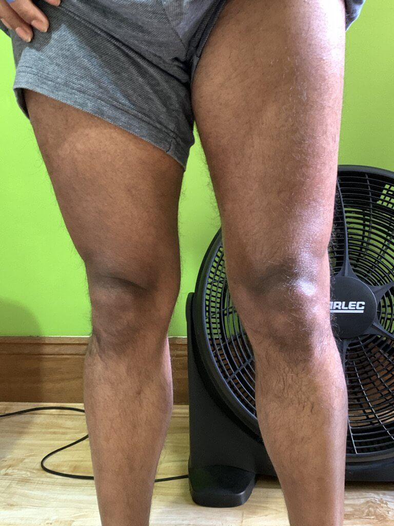Knee Rehab post fracture